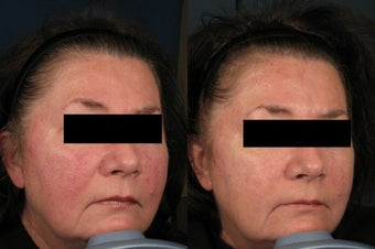 Rosacea Treatment before 1039867