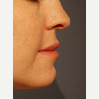 25-34 year old woman treated with Restylane Silk for Lip Augmentation after 3065327