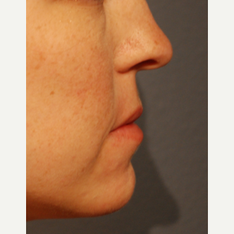 25-34 year old woman treated with Restylane Silk for Lip Augmentation before 3065327