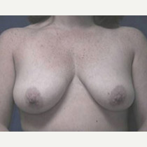 35-44 year old woman treated with Breast Lift before 3423709