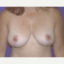 35-44 year old woman treated with Breast Lift after 3423709