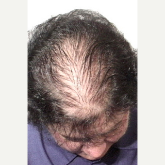Hair Transplant before 3241467