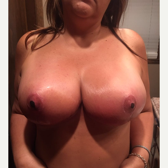 35-44 year old woman treated with Breast Reduction after 3305046
