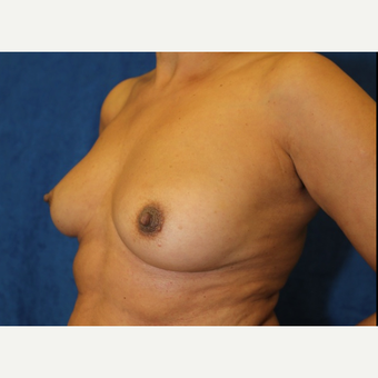 Fat Transfer to Breast (side view QL)