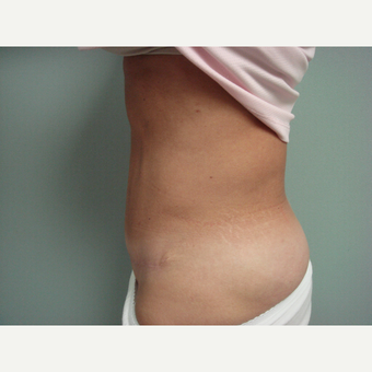 35-44 year old woman treated with Tummy Tuck after 3300096
