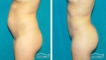 Liposuction  1500905