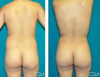 Liposuction  after 1500905