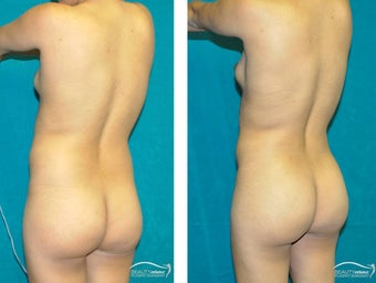 Liposuction  before 1500905