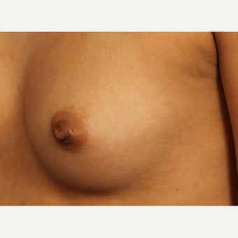 Inverted nipple repair after 1780563