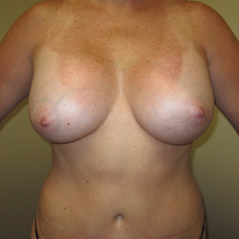 35-44 year old woman treated with Breast Implants after 3129226