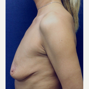45-54 year old woman treated with Breast Lift with Implants before 3520179