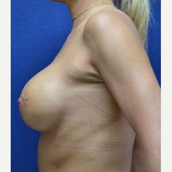 45-54 year old woman treated with Breast Lift with Implants after 3520179