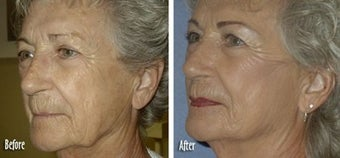 Threadlift to full face for jaw and neck definition before 6822