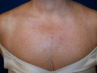 Photofacial IPL: Chest  before 1262659