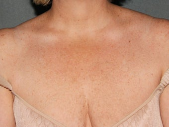Photofacial IPL: Chest  after 1262659