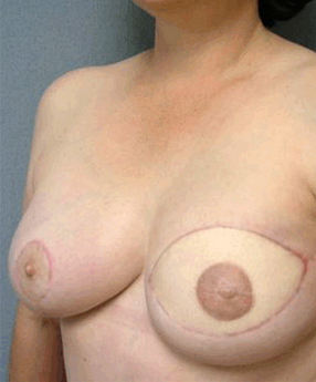 Breast Reconstruction after 906293