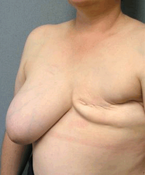 Breast Reconstruction before 906293