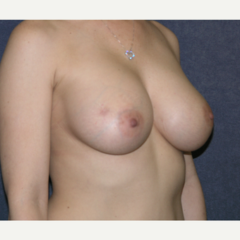 35-44 year old woman treated with Breast Augmentation after 3455599