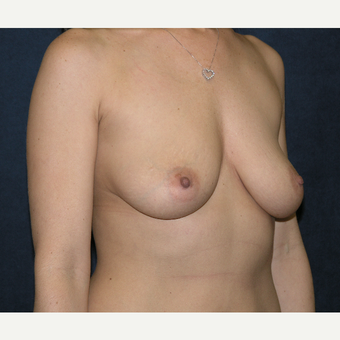35-44 year old woman treated with Breast Augmentation before 3455599