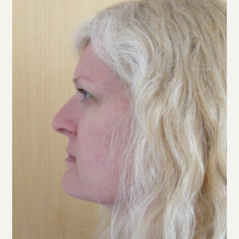 35-44 year old woman treated with Rhinoplasty before 3686996