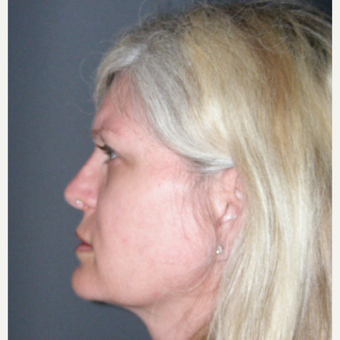 35-44 year old woman treated with Rhinoplasty after 3686996