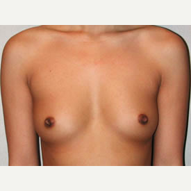 Breast Augmentation before 3680749