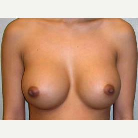 Breast Augmentation after 3680749