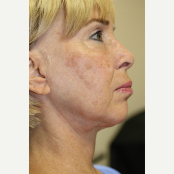 55-64 year old woman treated with Facelift before 3837278