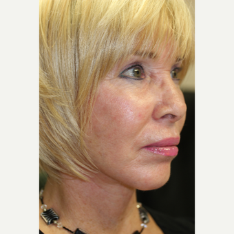 55-64 year old woman treated with Facelift after 3837278