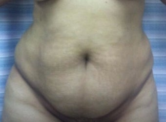 25-34 year old woman treated with Mini Tummy Tuck before 1800665