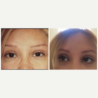 45-54 year old woman treated with Eyelid Surgery before 3174534