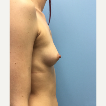 25-34 year old woman treated with Breast Implants before 3679535