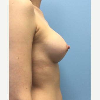 25-34 year old woman treated with Breast Implants after 3679535