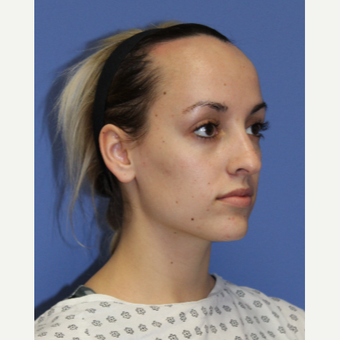 25-34 year old woman treated with Hair Loss Treatment before 3703028