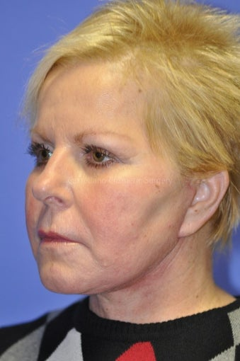 Woman, skin rejuvenation cheeks and neck after 851398