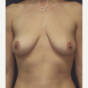 35-44 year old woman treated with Breast Lift with Implants before 3520163