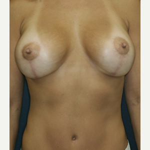 35-44 year old woman treated with Breast Lift with Implants after 3520163