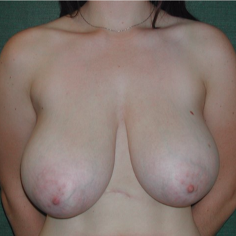 18-24 year old woman treated with Breast Reduction before 3127901