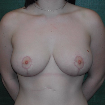 18-24 year old woman treated with Breast Reduction after 3127901