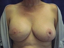 58 Year Old with Breast Reconstruction after 1105633