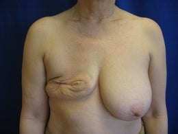 58 Year Old with Breast Reconstruction before 1105633