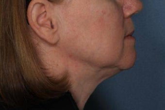 Female treated for Sagging Skin at Jawline before 772024