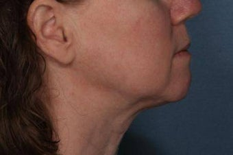 Female treated for Sagging Skin at Jawline after 772024