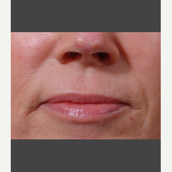 55-64 year old woman treated with Juvederm before 3725319