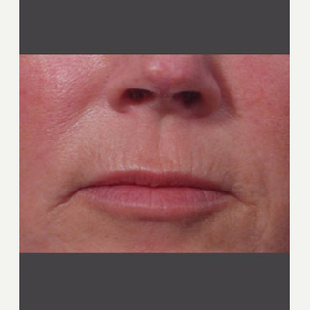 55-64 year old woman treated with Juvederm after 3725319