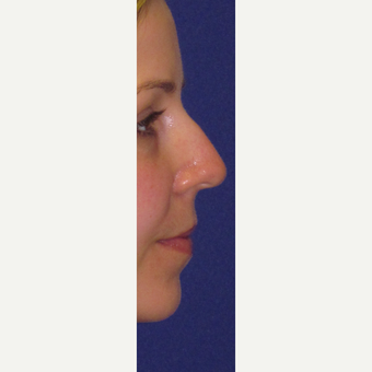 "Non Surgical ""Liquid"" Nose Job before 3084758"
