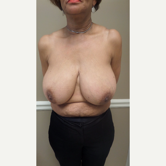 45-54 year old woman treated with Breast Augmentation before 3548815