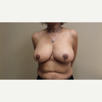 45-54 year old woman treated with Breast Augmentation after 3548815