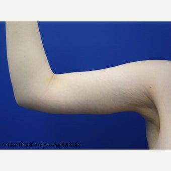 45-54 year old woman treated with Arm Lift after 1979030