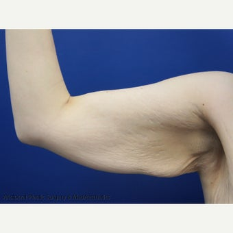 45-54 year old woman treated with Arm Lift before 1979030